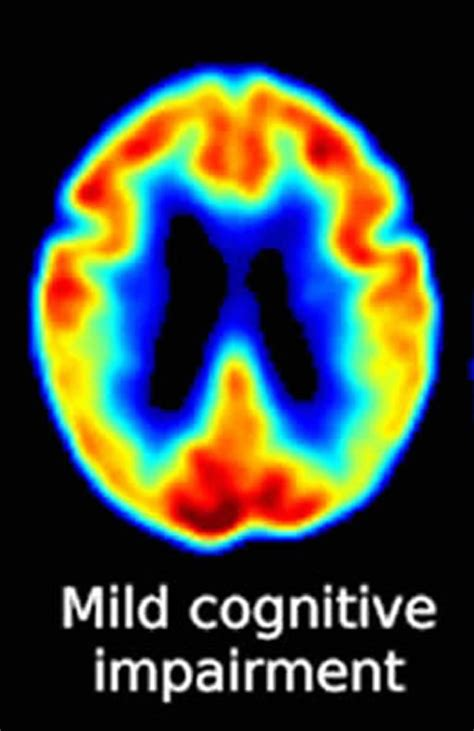 Training May Help Those With Mild Cognitive Impairment