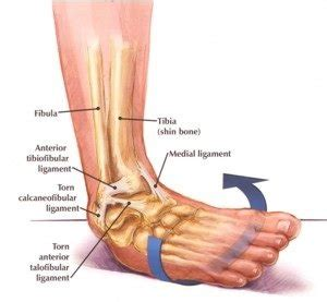 Sprained ankle treatment with 2 exercises | Grade 1, 2 or 3